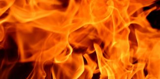 personal injury Scarring and burns