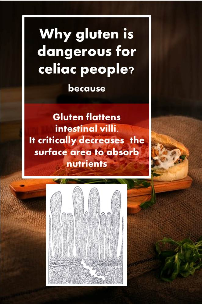 Gluten in foods where you least expect it